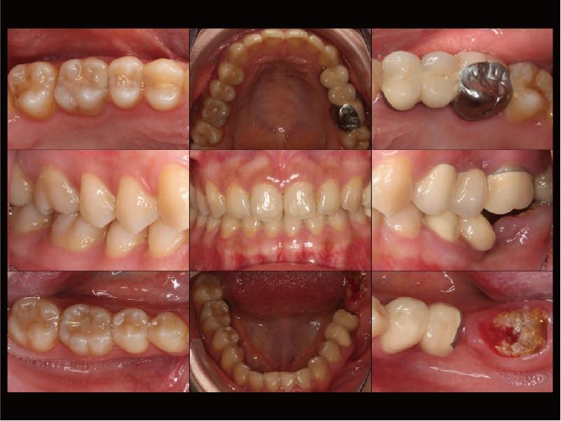 牙周病治療-治療前-完整評估檢查-各角度口腔牙齒近照