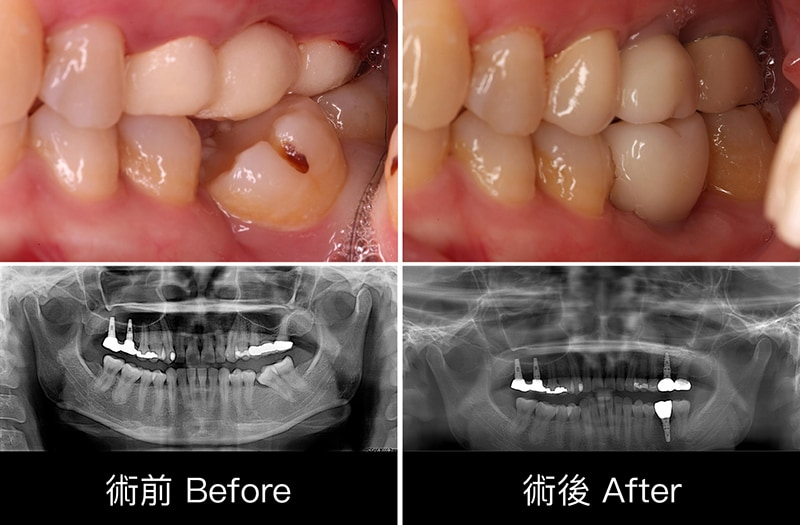 牙周病治療-牙周病手術-前後比較-牙齒近照-X光片