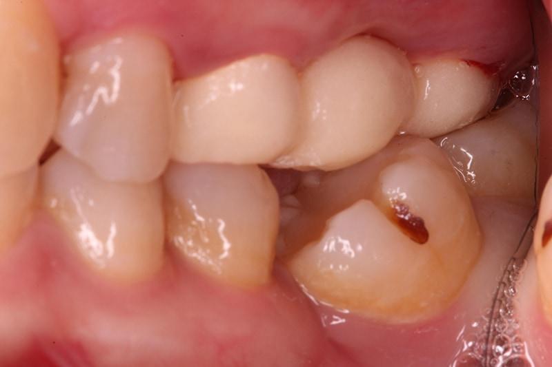 裝上臨時假牙