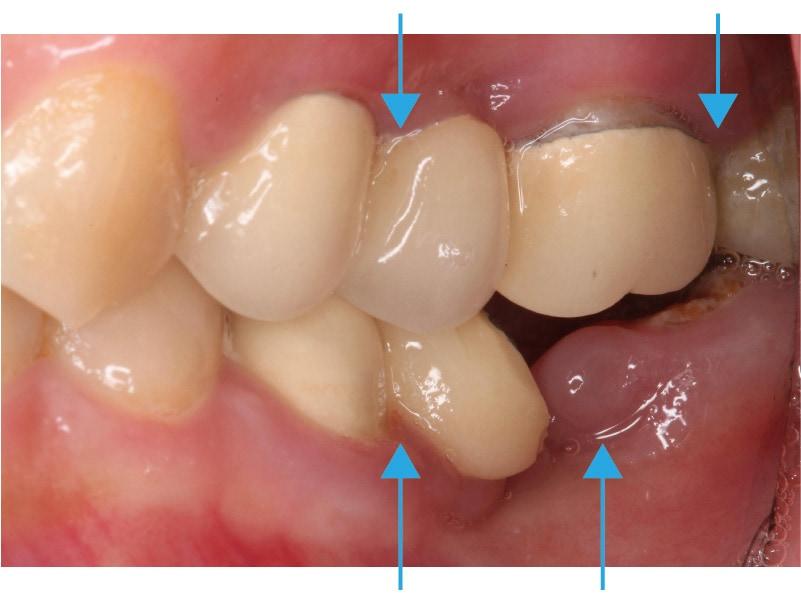 輕微牙周病-患處和左上牙橋-牙齦發炎-牙齦紅腫