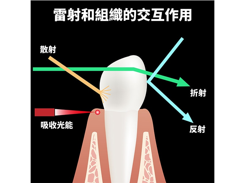 雷射照在牙齒或牙周組織時的效應-葉立維醫師-桃園牙周病