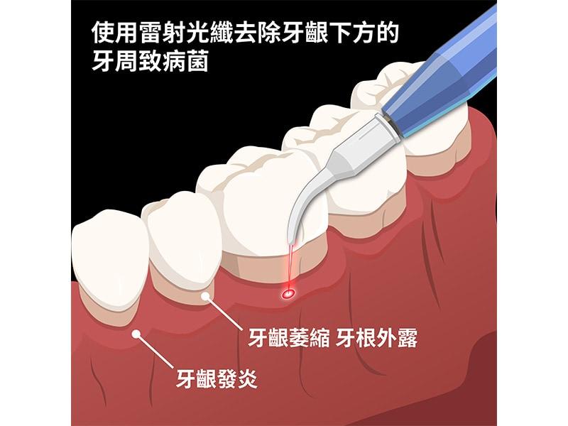 雷射牙周治療-水雷射-深入牙周囊袋殺菌-葉立維醫師-桃園牙周病