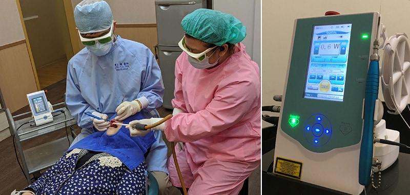 雷射牙周病治療過程-雷射設備-二極體雷射