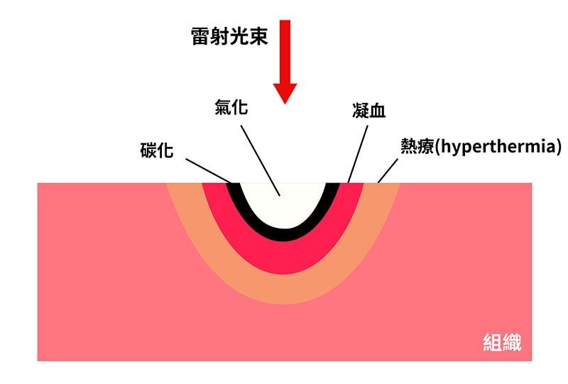雷射-消融作用-去除發炎組織-止血效果-葉立維醫師-桃園牙周病