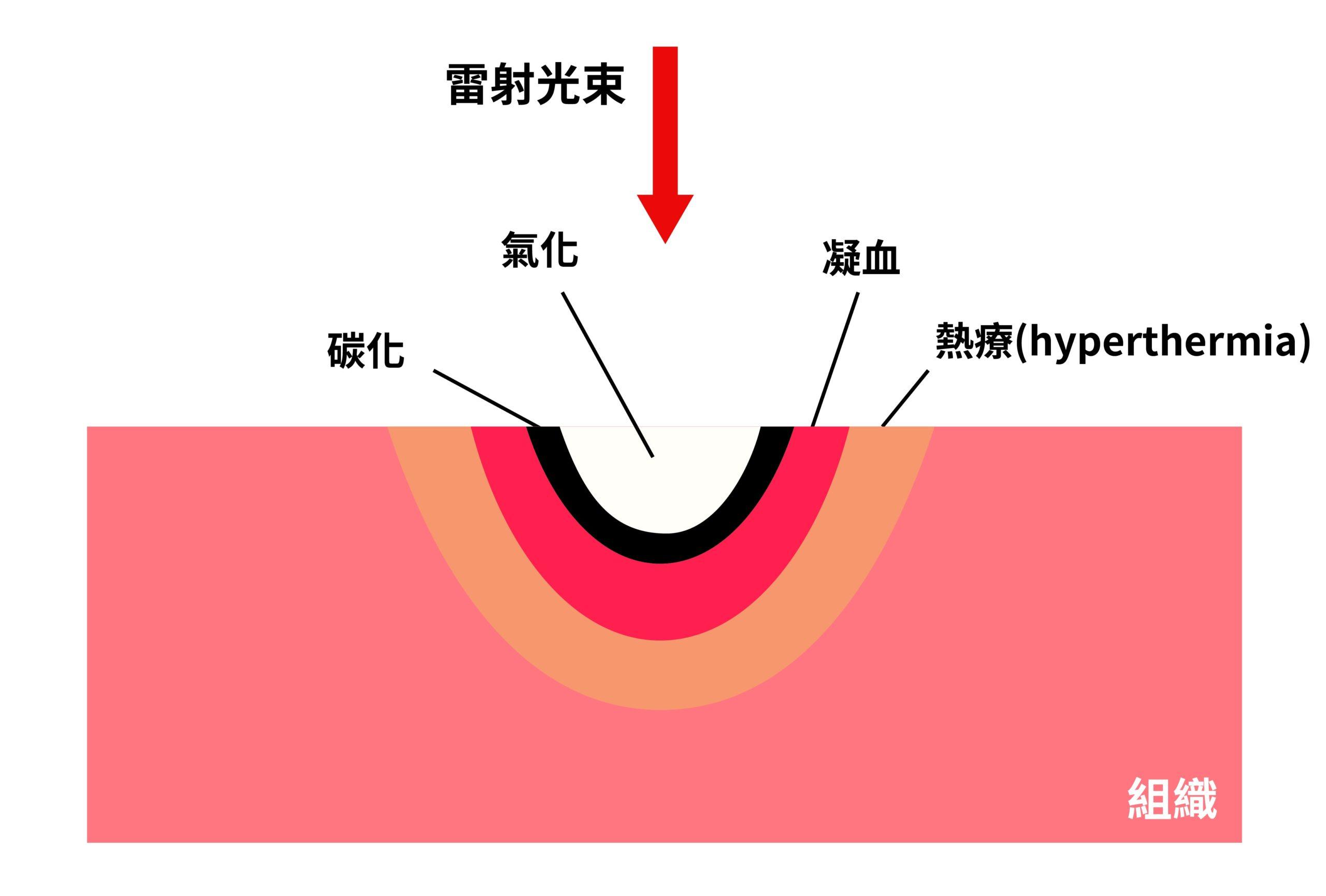 雷射-軟組織-切割-清創-止血-加快癒合-葉立維醫師-桃園牙周病