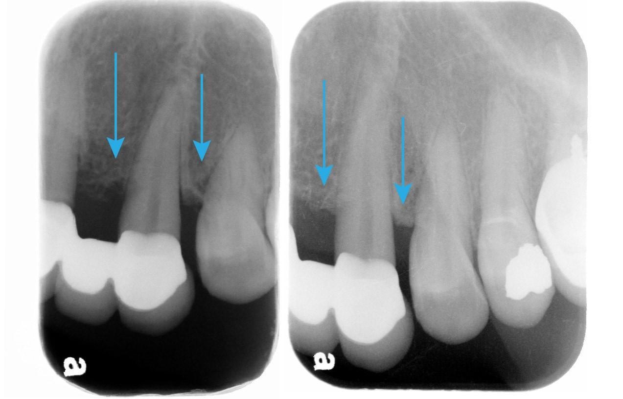 全口嚴重牙周病-雷射治療牙周病效果-治療前後-左上犬齒-牙周齒槽骨自然再生