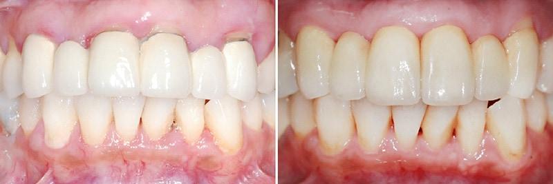 全口嚴重牙周病-雷射治療牙周病效果-治療前後-改善牙齦紅腫-牙齦發炎-更換門牙假牙