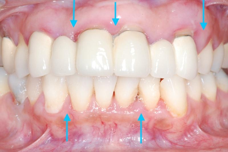 嚴重牙周病治療案例-牙周病症狀照片-治療前牙齦易紅腫出血