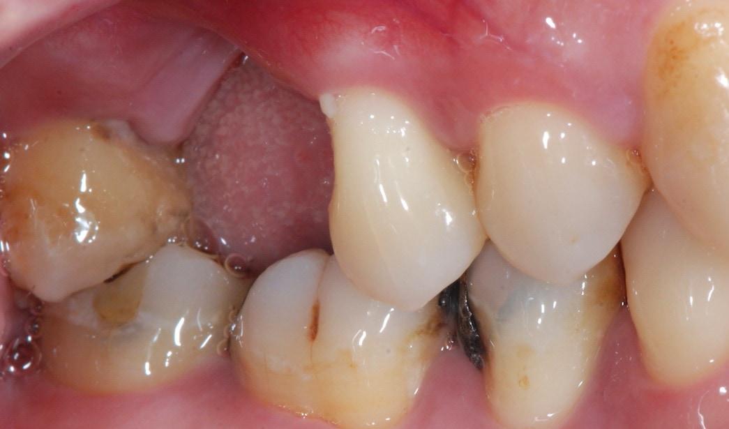 嚴重牙周病-治療前-右上第一大臼齒拔除缺牙處