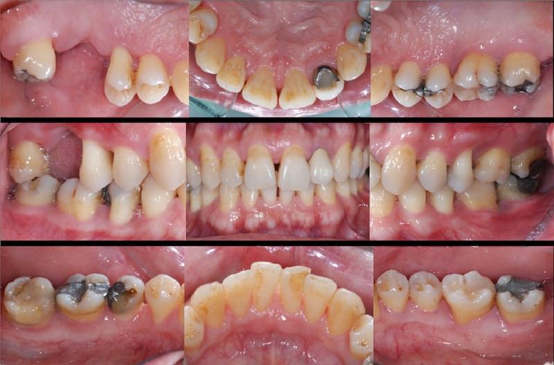 嚴重牙周病-牙周病第一階段治療後-口內拍照紀錄-牙齦紅腫已改善