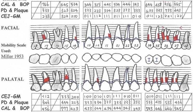 嚴重牙周病-牙周病第一階段治療後-牙周檢查表-上顎-降低牙周囊袋深度