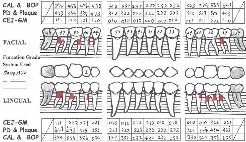嚴重牙周病-牙周病第一階段治療後-牙周檢查表-下顎-降低牙周囊袋深度