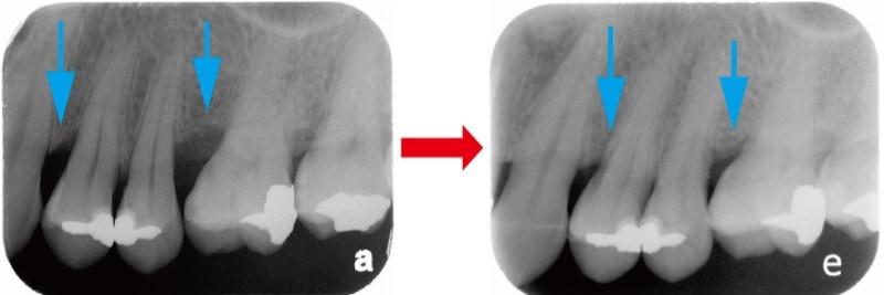 嚴重牙周病-牙周翻瓣手術-手術前-手術一年後-X光片-齒槽骨再生