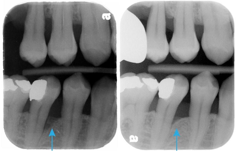 嚴重牙周病-雷射治療牙周病效果-治療前後-右下第二小臼齒-牙周齒槽骨自然再生
