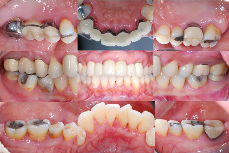 全口牙周病治療前-完整牙周檢查1-各角度口內數位照片