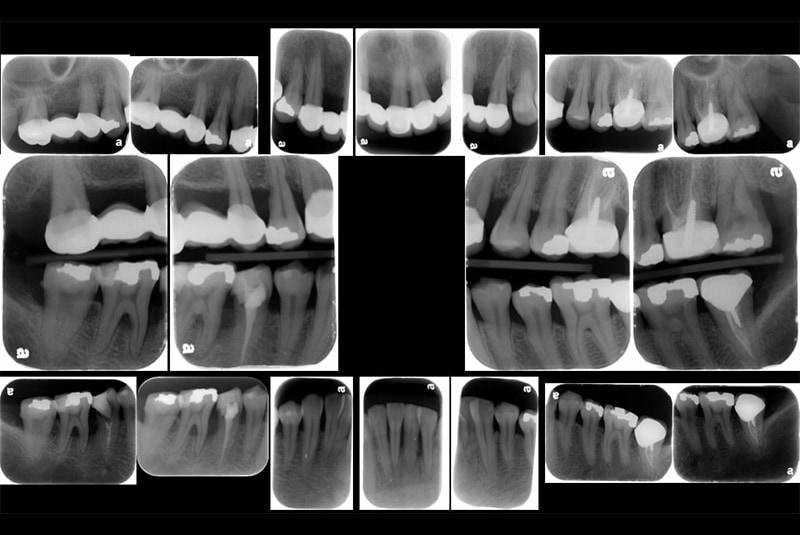 全口牙周病治療前-完整牙周檢查2-全口X光照