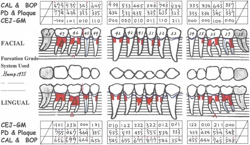 全口牙周病治療前-完整牙周檢查3-牙周檢查表-下顎