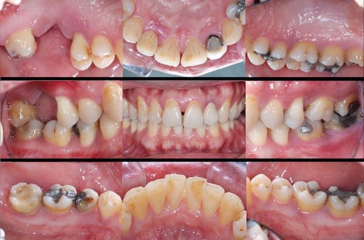 完整牙周病檢查-口內拍照紀錄