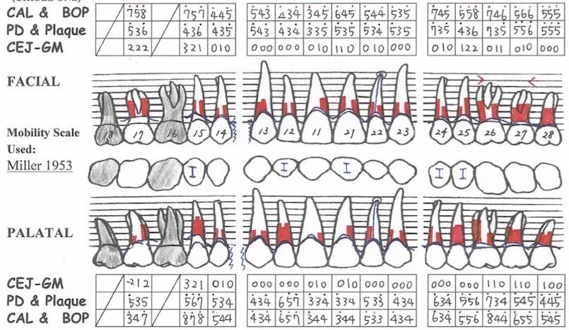 完整牙周病檢查-牙周檢查表-上顎
