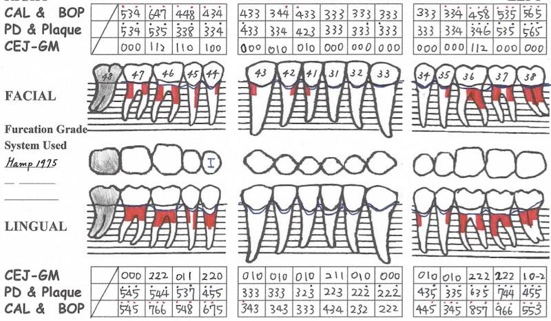 完整牙周病檢查-牙周檢查表-下顎