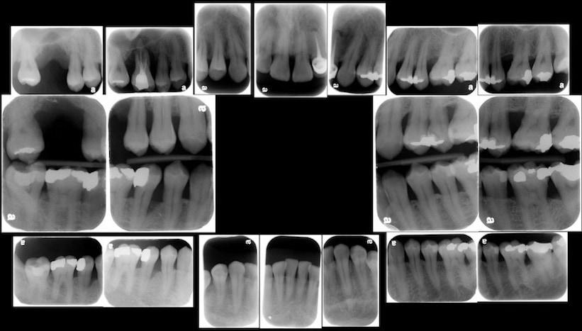 完整牙周病檢查-X光片檢查