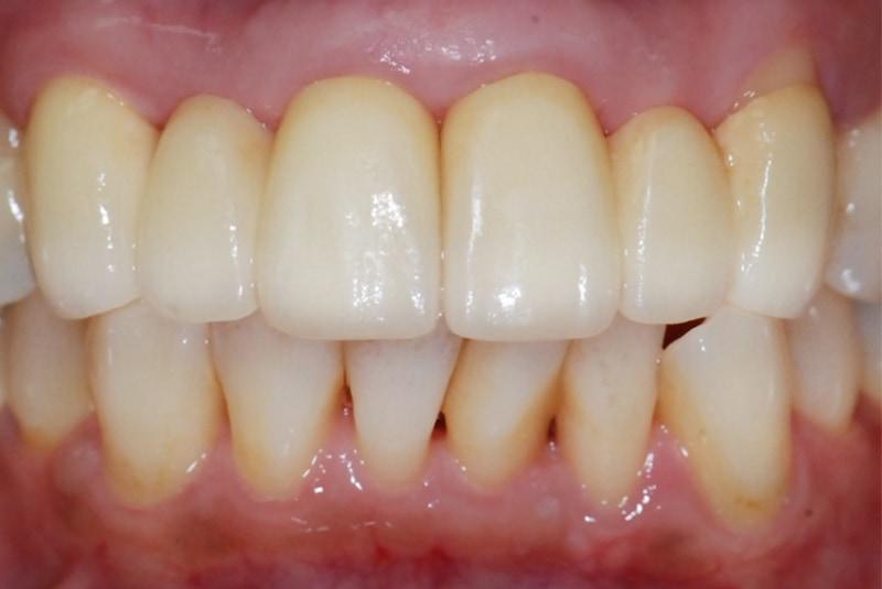 拆除舊假牙-更換自然美觀的全瓷假牙