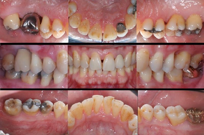 植牙假牙完成-一年後追蹤完整檢查-口內拍照紀錄-全口牙周狀況已穩定