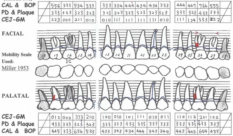 植牙假牙完成-一年後追蹤完整檢查-牙周檢查表-上顎-全口牙周狀況已穩定