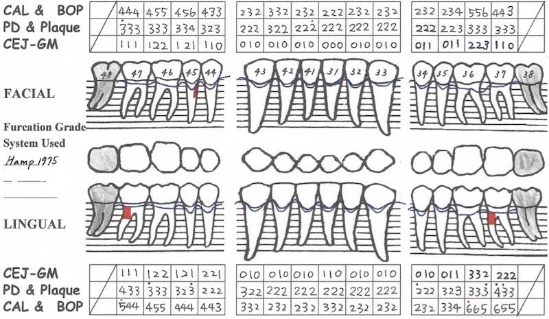 植牙假牙完成-一年後追蹤完整檢查-牙周檢查表-下顎-全口牙周狀況已穩定