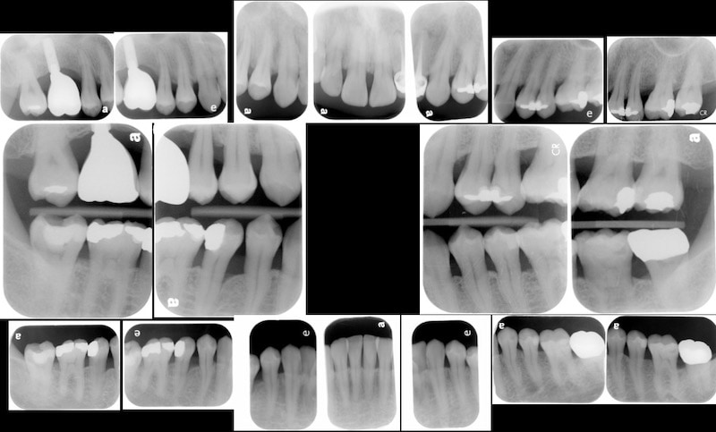 植牙假牙完成-一年後追蹤完整檢查-X光片檢查-全口牙周狀況已穩定