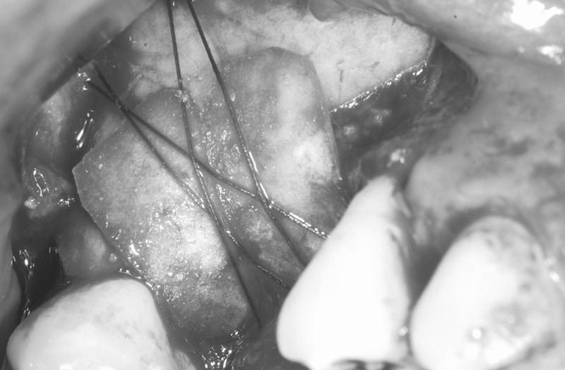 植牙手術-側窗式鼻竇增高術-縫線固定-膠原蛋白再生膜