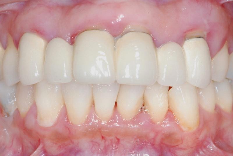 牙周治療前-前牙假牙