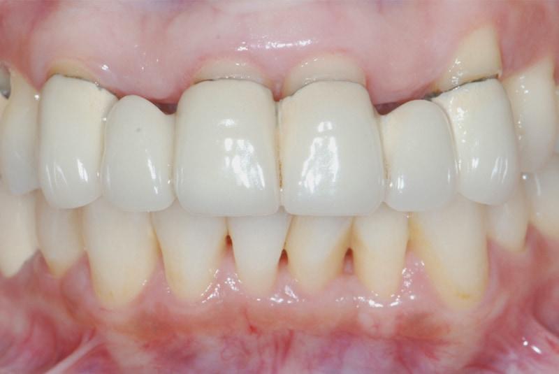 牙周治療前-舊假牙露出金屬黑邊