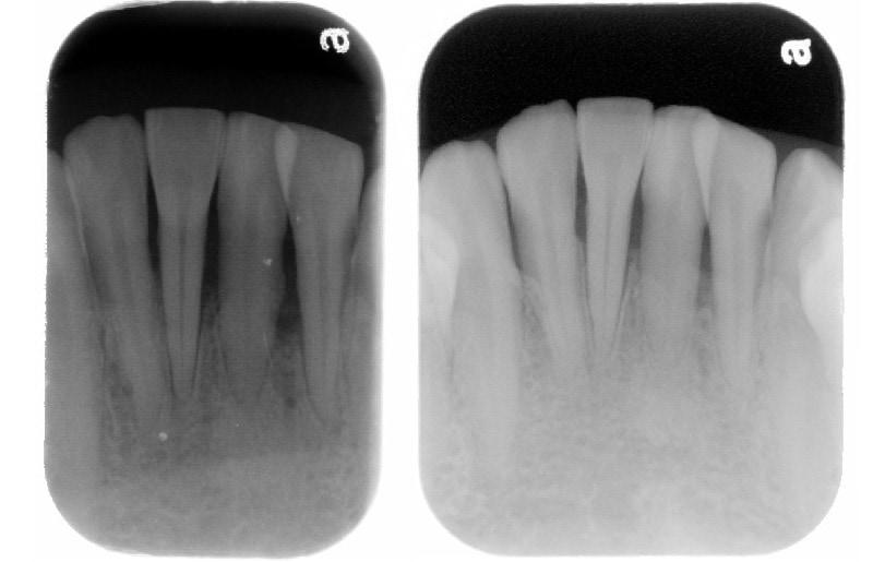 牙周病手術後半年追蹤-下顎前牙區-牙周齒槽骨無手術自然再生