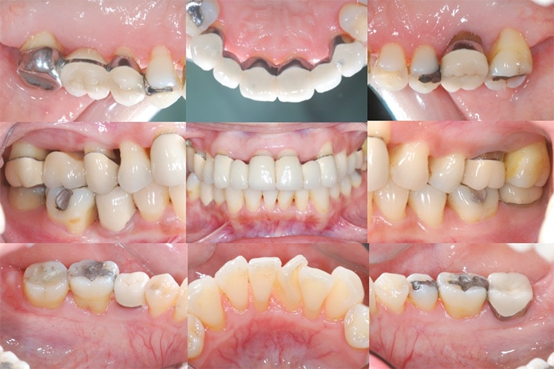 牙周病手術後半年追蹤-全口數位照片-牙周狀況良好