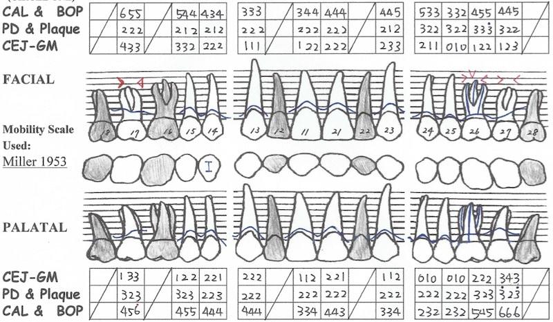 牙周病手術後半年追蹤-全口牙周檢測表-上顎