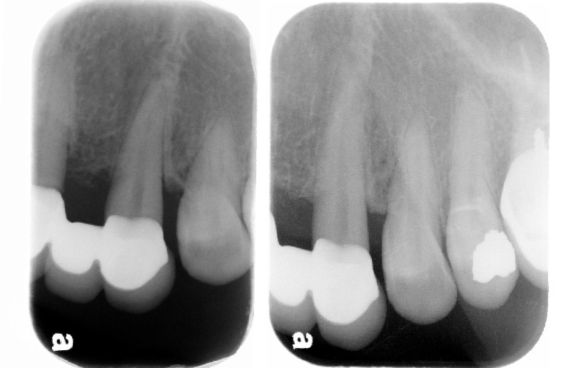 牙周病手術後半年追蹤-左上犬齒-牙周齒槽骨無手術自然再生