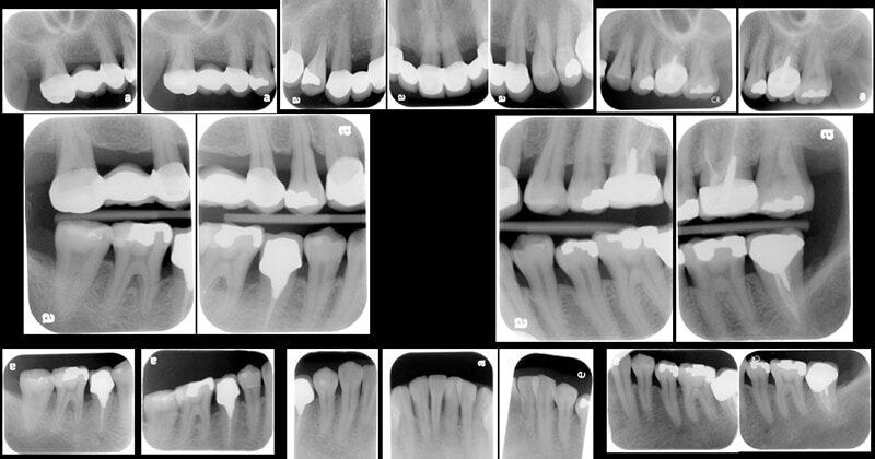 牙周病手術後半年追蹤-X光片檢查