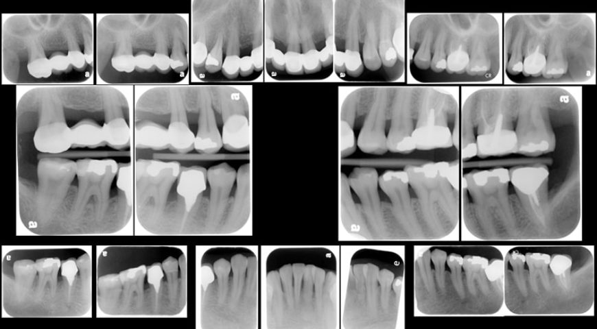 嚴重牙周病治療推薦: 全口牙周病/牙周翻瓣手術/牙周再生手術