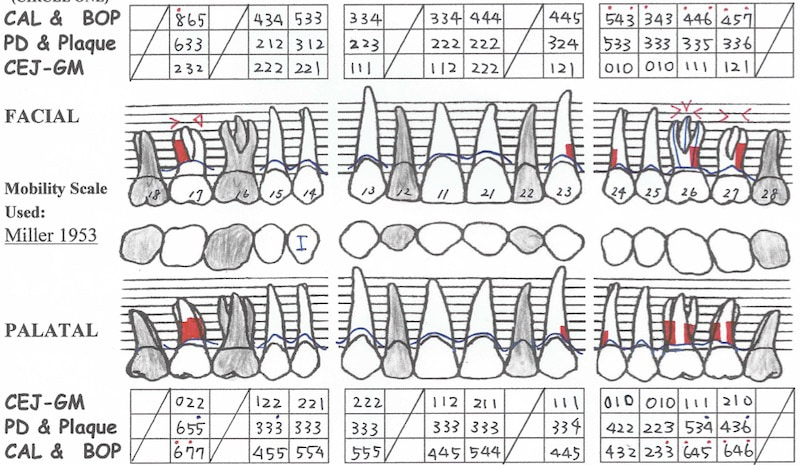 第一階段牙周病治療-再評估-上顎牙周檢查表