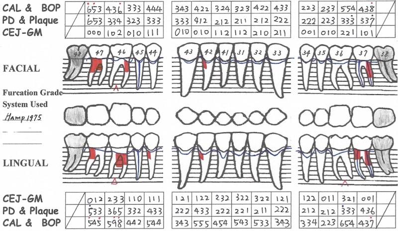 第一階段牙周病治療-再評估-下顎牙周檢查表