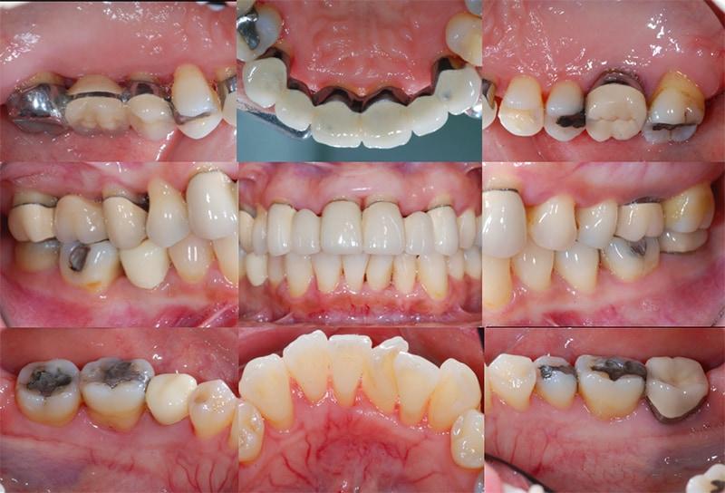 第一階段牙周病治療-再評估-改善牙齦發炎-牙齦紅腫-牙齦出血