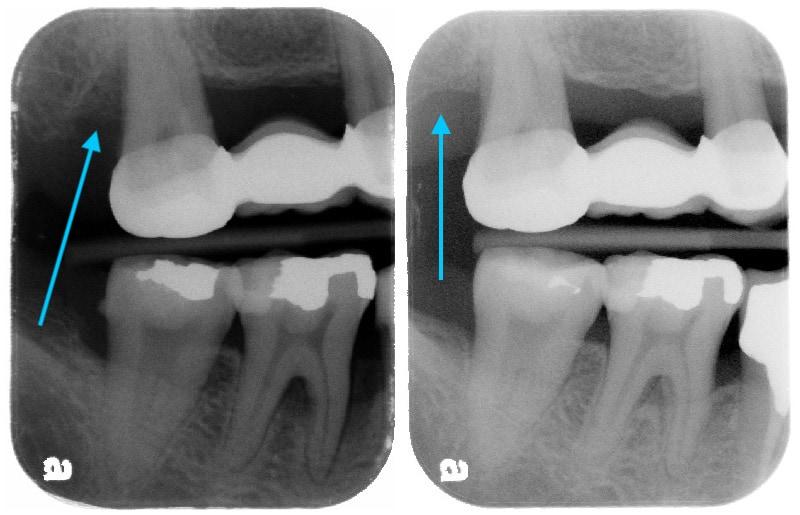 第二階段牙周病手術-右上第二大臼齒-手術前後比較-齒槽骨再生