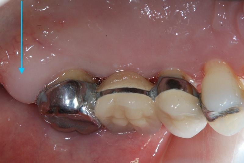 第二階段牙周病手術-右上第二大臼齒-手術前-牙齦腫大