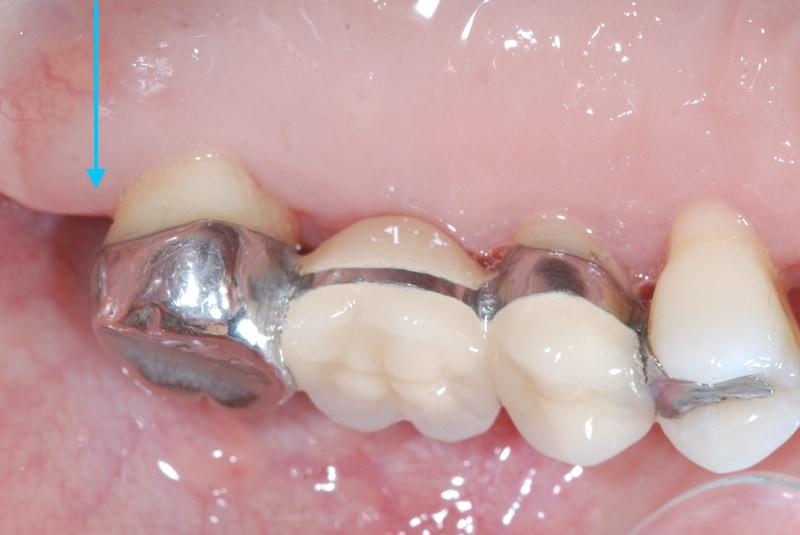 第二階段牙周病手術-右上第二大臼齒-手術後-牙齦恢復健康顏色