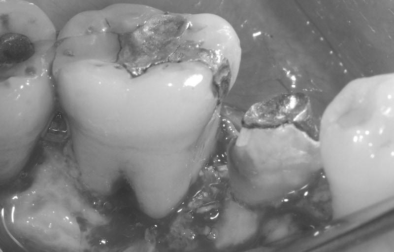 第二階段牙周病手術-右下第一第二大臼齒-手術中-徹底清創-牙周再生手術