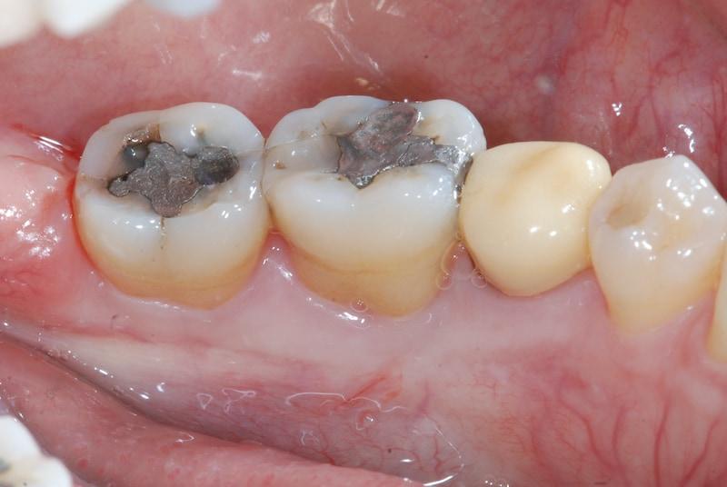 第二階段牙周病手術-右下第一第二大臼齒-手術前-數位照片