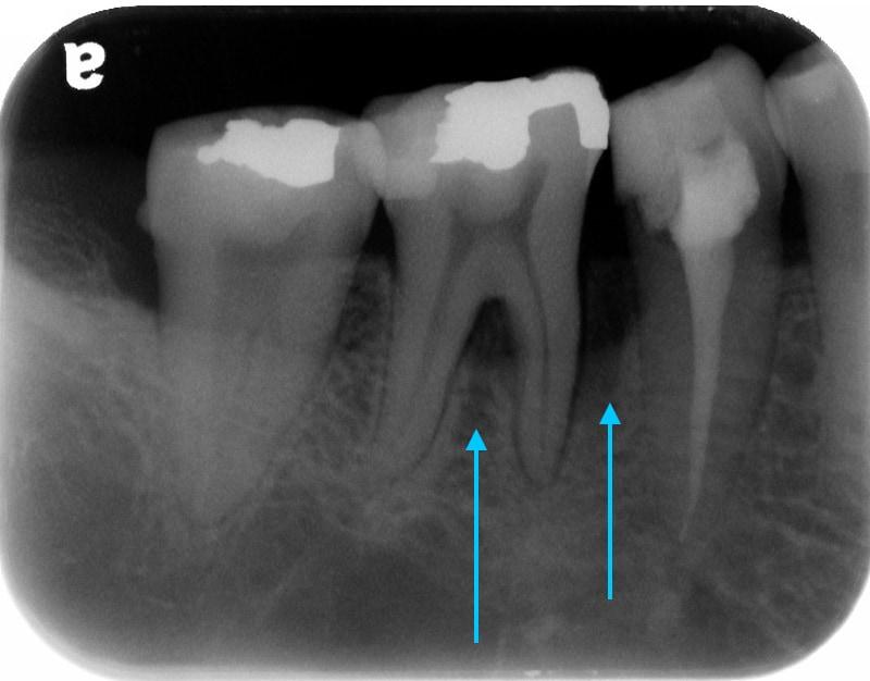 第二階段牙周病手術-右下第一第二大臼齒-手術前-X光片-牙周齒槽骨在牙根分岔處和骨缺損處