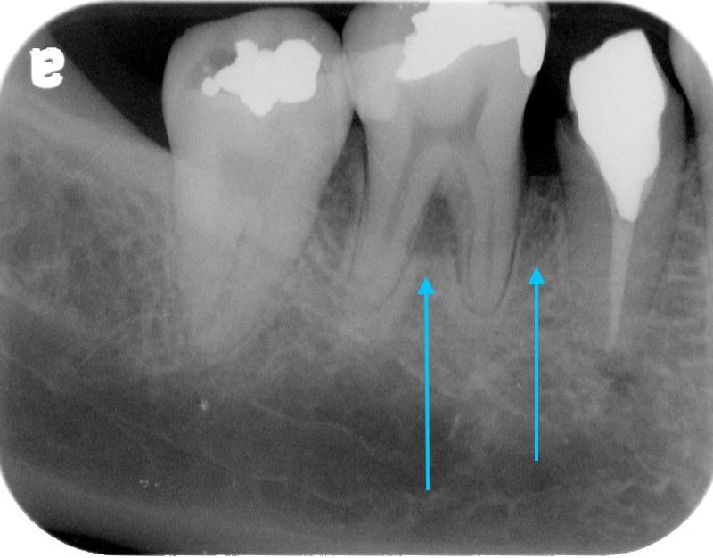 第二階段牙周病手術-右下第一第二大臼齒-手術後-牙周齒槽骨再生