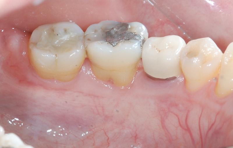 第二階段牙周病手術-右下第一第二大臼齒-牙周再生手術-手術後牙周組織再生